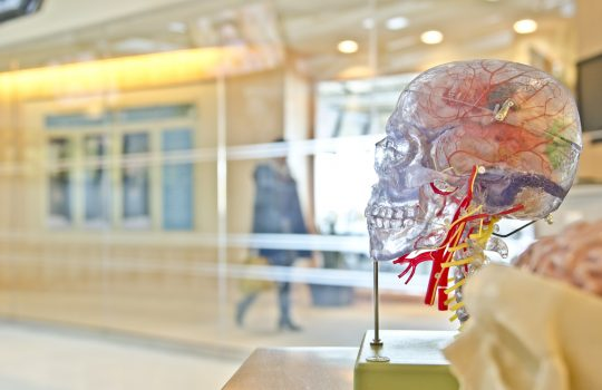 Neurofeedback e trauma
